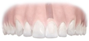Astra dental implant single tooth upper